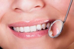 A dental mirror reflects a smile | Tooth Colored Fillings Gaithersburg