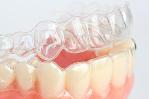 an image of Invisalign aligners on a denture | Invisalign Gaithersburg