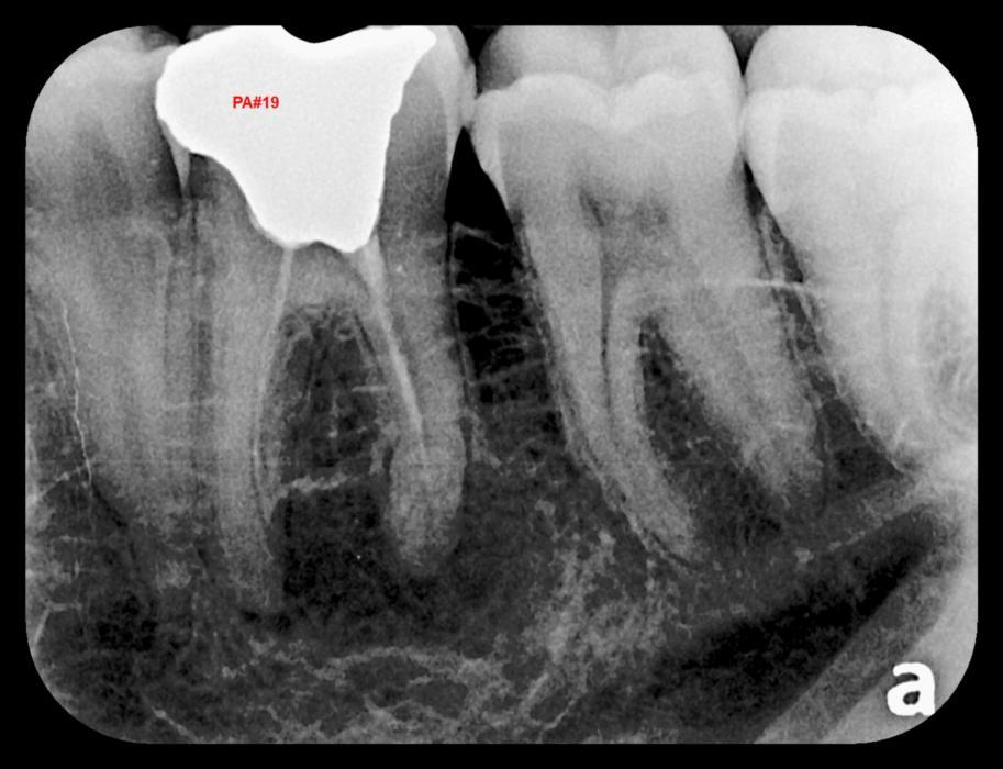 Digital X-ray of teeth | Lakeforest Dental Associates
