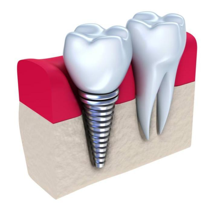 dental implants gaithersburg md