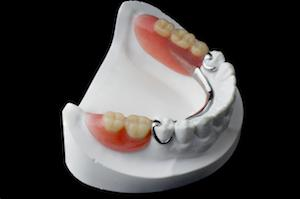 a set of partial dentures sit atop a mold | Dentures Gaithersburg MD