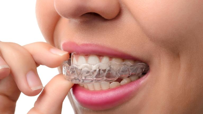 Adult Orthodontics in Gaithersburg MD
