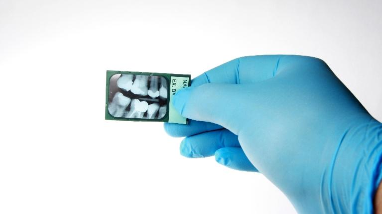 X-Ray | Dental Exams in Gaithersburg MD