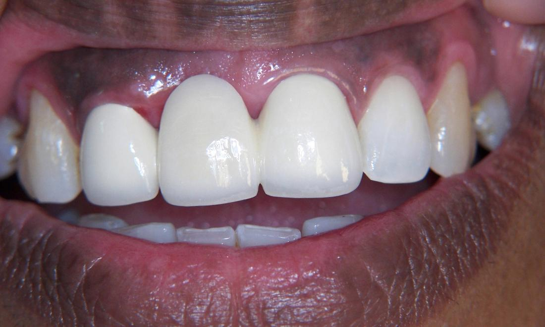 Bridge Tooth Replacement