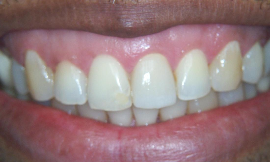 Dental Crowns in Gaithersburg MD