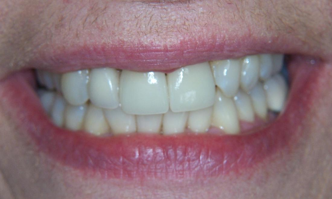 Tooth Restoration in Gaithersburg MD