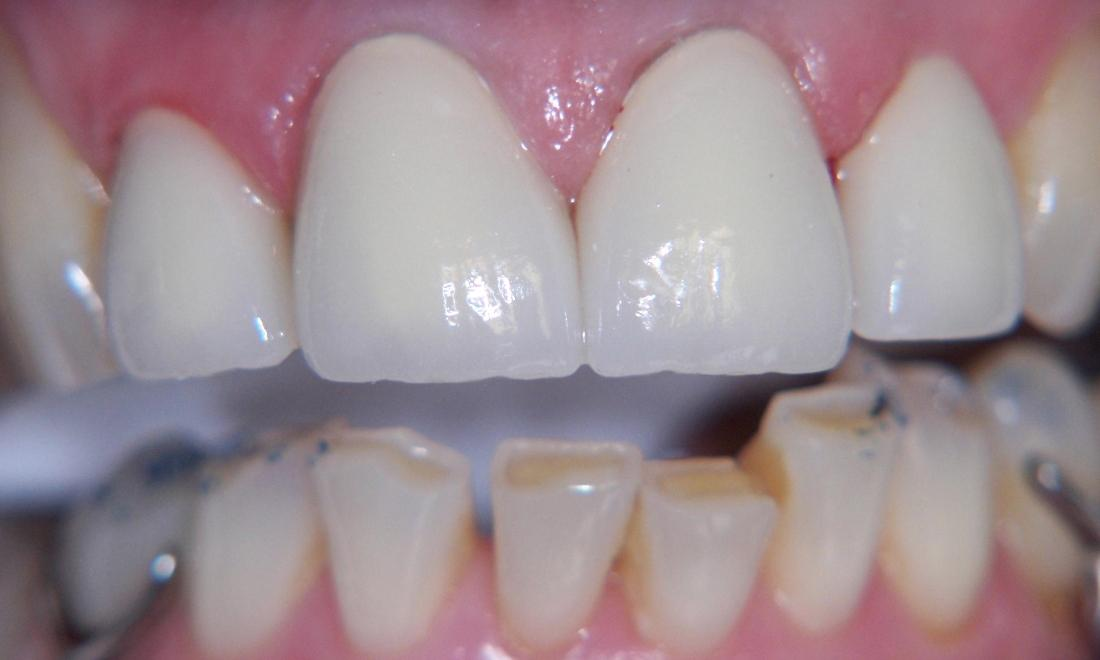 Dental Crown Restoration in Gaithersburg MD