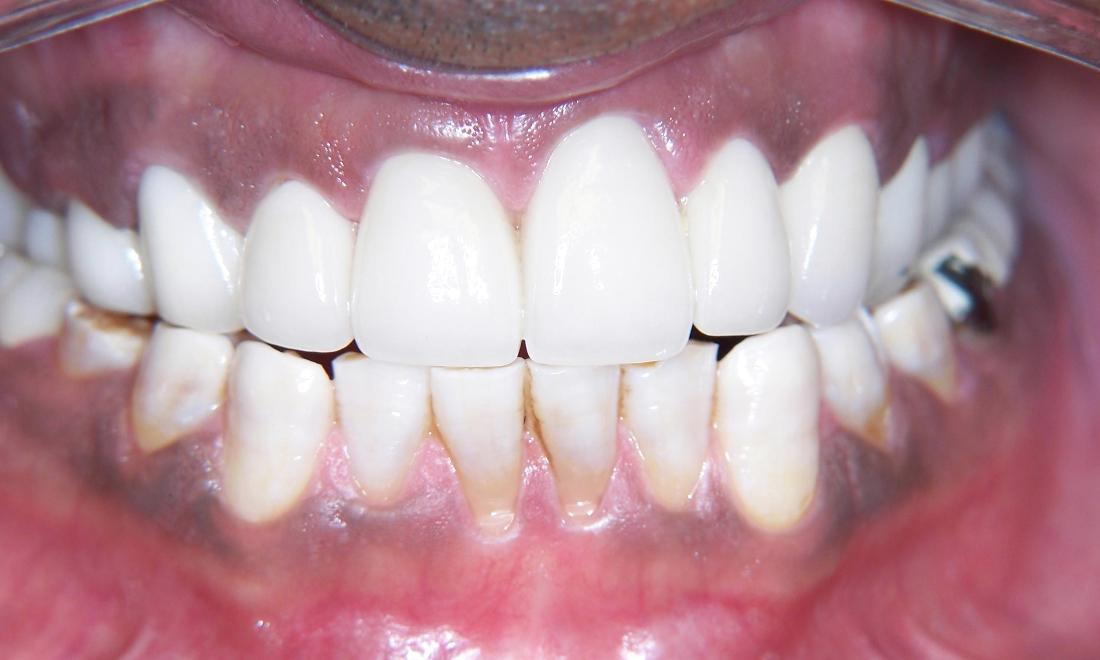 Dental Crown Restorations in Gaithersburg MD