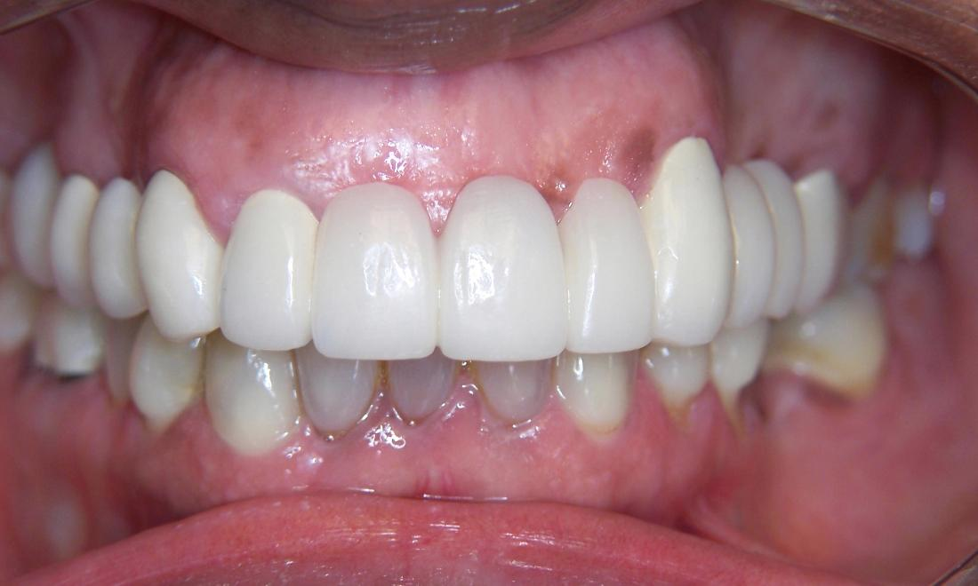 Dental Bridges in Gaithersburg MD