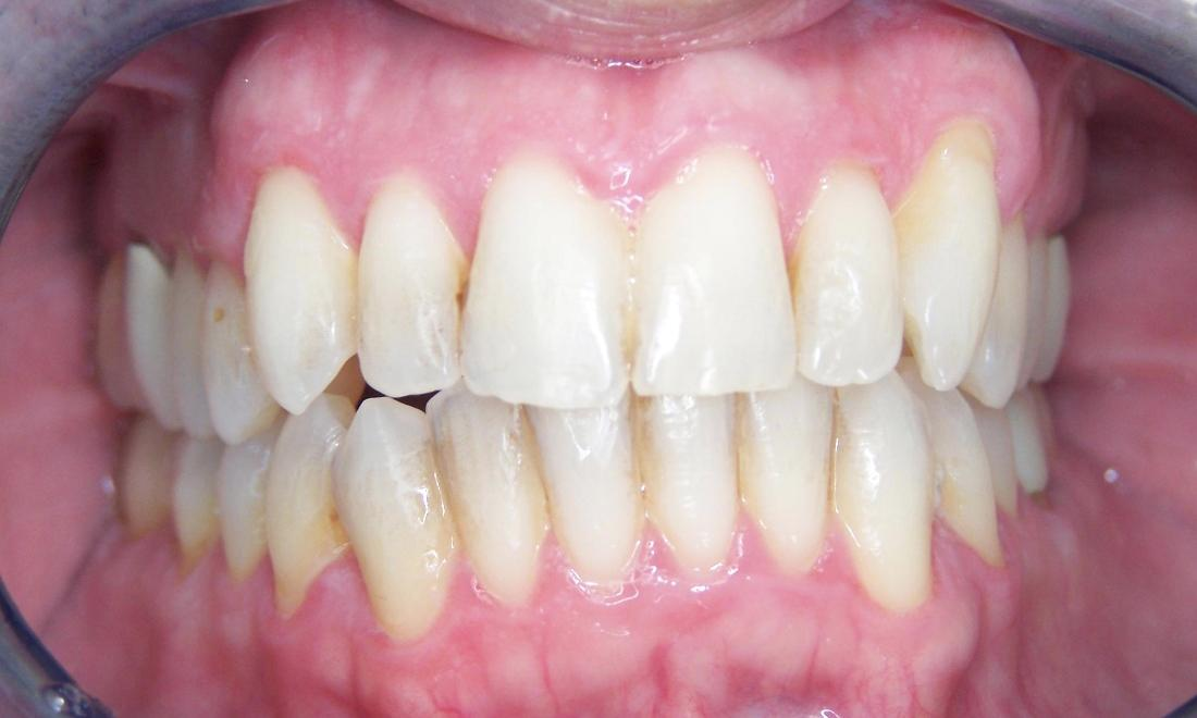 Invisalign Orthodontics in Gaithersburg MD