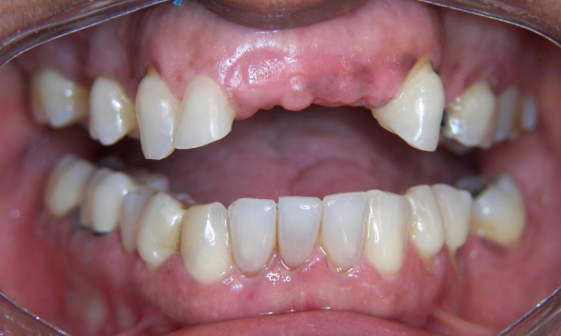 Tooth Replacement in Gaithersburg MD