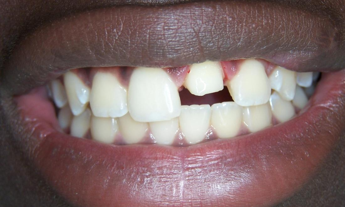 Front Tooth Repair in Gaithersburg MD