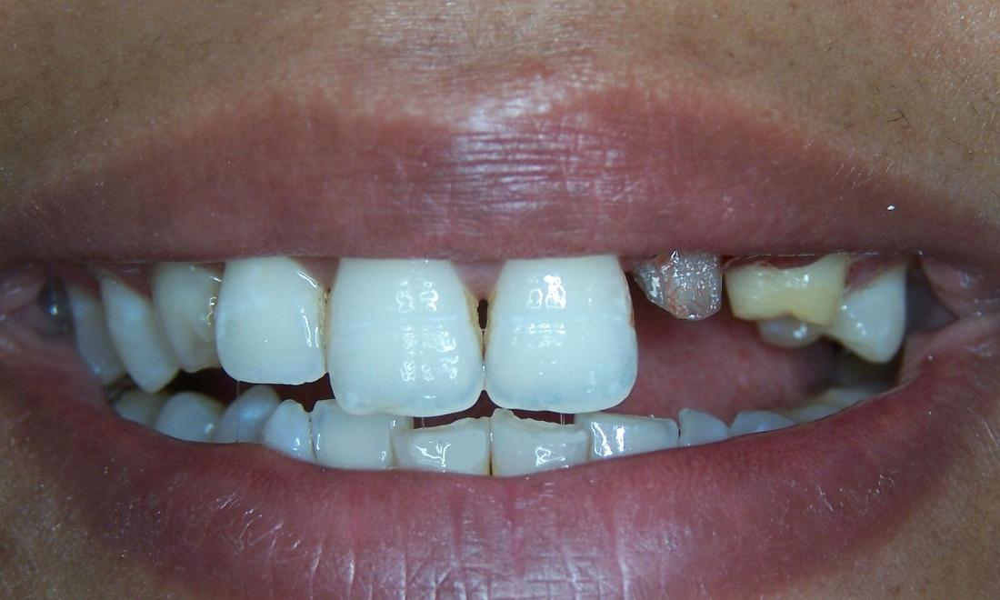 Missing Tooth Replacement in Gaithersburg MD