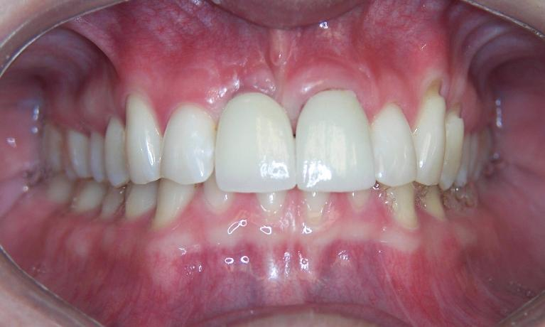 Dental-Implant-After-Image