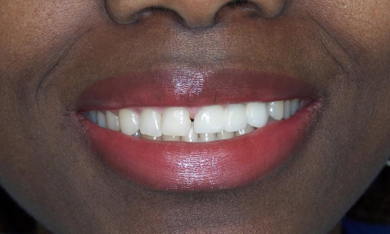 Teeth-replaced-with-Implants-and-Bridgework-After-Image