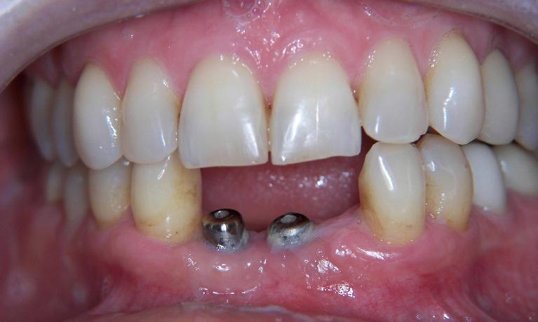 Implants-To-Replace-Missing-Lower-Teeth-Before-Image