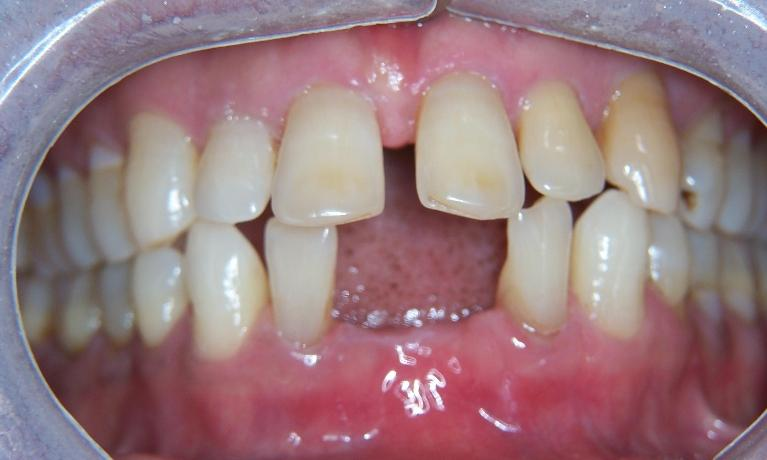 Invisalign-and-Implants-in-Gaithersburg-MD-Before-Image