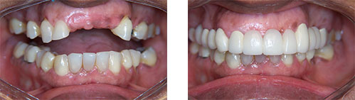 a before and after image of dental implants | Gaithersburg MD dentist